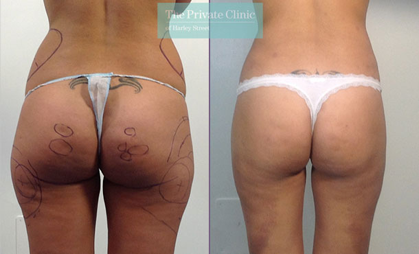 liposuction buttocks surgical lipo lipoplasty before after photos results mr roberto uccellini 019RU