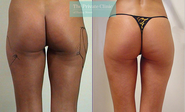 liposuction buttocks traditional surgical lipo lipoplasty before after photos results mr roberto uccellini 021RU