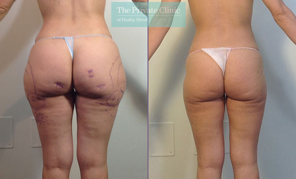 liposuction hips thighs surgery lipo lipoplasty uk before after photos results mr roberto uccellini 020RU