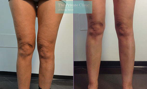 liposuction inner thighs traditional surgical lipo lipoplasty before after photos results mr roberto uccellini 024RU