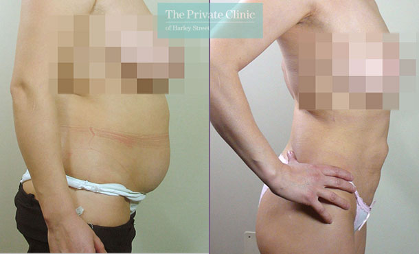liposuction stomach abdomen traditional surgical lipo lipoplasty before after photos results mr roberto uccellini side 026RU