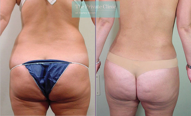 liposuction surgical lipo lipoplasty before after uk results photos mr roberto uccellini back 022RU