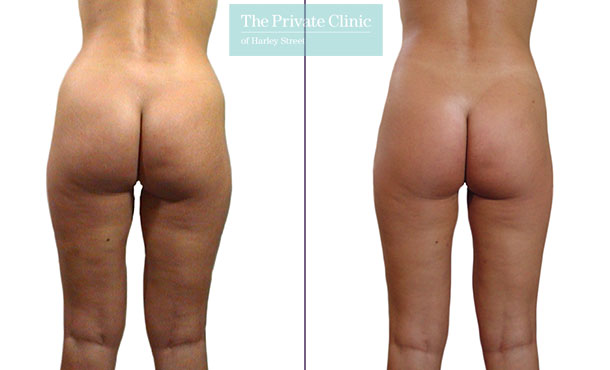 liposuction traditional surgical lipo lipoplasty before after photos london results mr roberto uccellini back 016RU