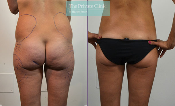 liposuction traditional surgical lipo lipoplasty before after photos uk results mr roberto uccellini front 017RU