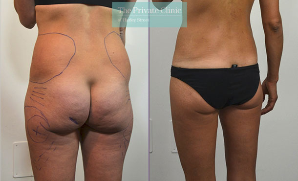 liposuction traditional surgical lipo lipoplasty hips butt before after photos results mr roberto uccellini back 017RU