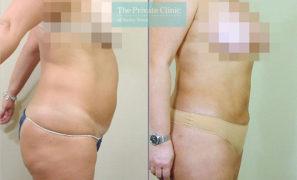 liposuction tummy traditional surgical lipo lipoplasty before after results photos mr roberto uccellini side 022RU