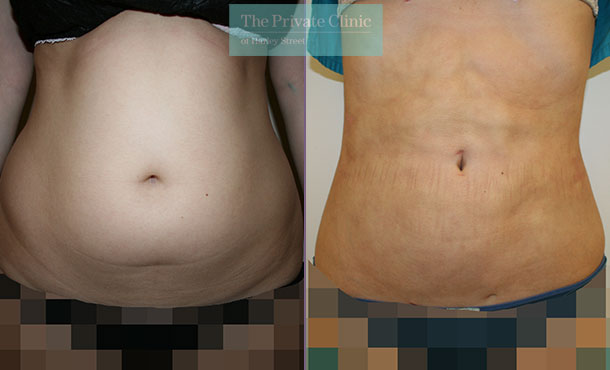 liposuction tummy vaser lipo uk before after results photos dr dennis wolf 010DW