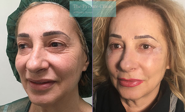 lower blepharoplasty eyelid surgery eyebag fat transfer mr roberto uccellini before after results photos angle 003RU