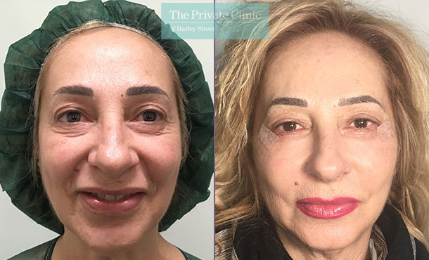 lower blepharoplasty eyelid surgery eyebag fat transfer mr roberto uccellini before after results photos front 003RU