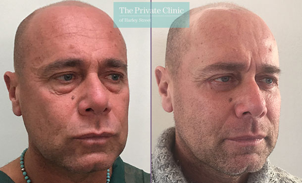 lower blepharoplasty male eyelid surgery eyebag fat transfer mr roberto uccellini before after results photos 004RU