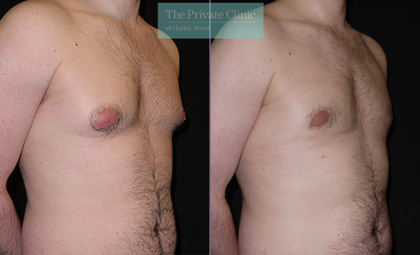 male breast reduction surgery liposuction gynecomastia before after photos results angle 002MB