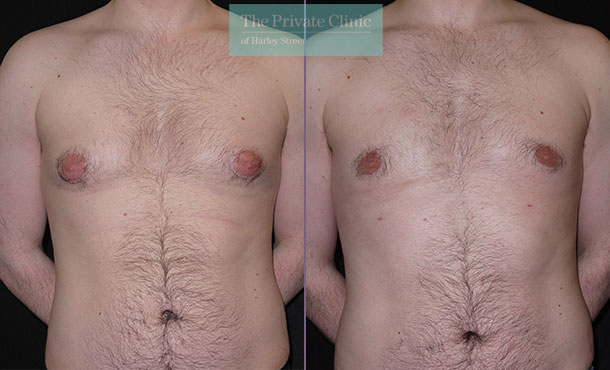male breast reduction without surgery liposuction gynecomastia before after photos uk results front 002MB