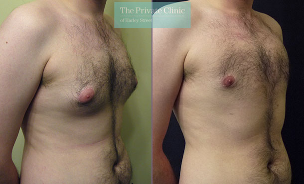 male chest reduction surgery uk liposuction gynecomastia before after photos results angle 001MB