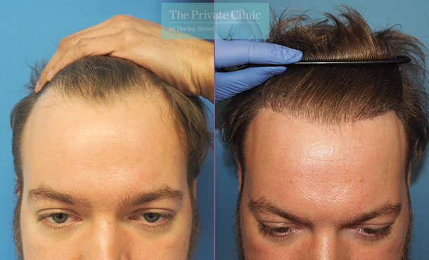 male hair transplant uk before after photo results mr michael mouzakis front 015MM