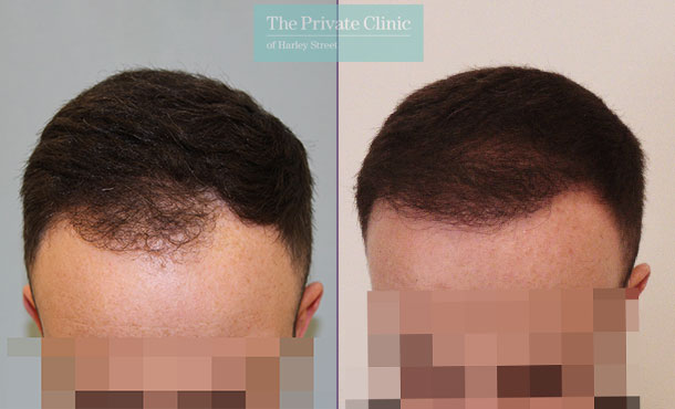 male hair transplant uk before after photos mr michael mouzakis front 021MM
