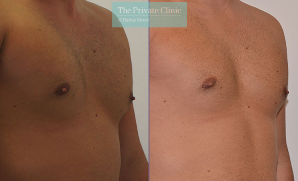male nipple reduction before after photos results mr adrian richards 037AR