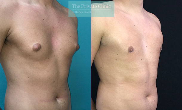 man boobs male chest reduction liposuction gynecomastia surgery before after results photos angle 003MB