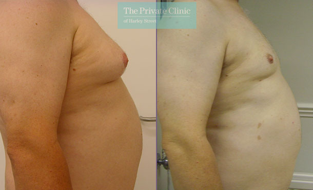 man boobs male chest reduction micro lipo gynecomastia surgery before after results photos side 001TPC