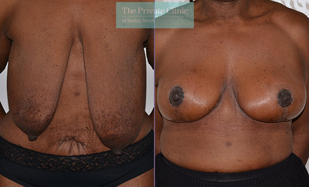 mastopexy surgery breast uplift before after results photos mr adrian richards front 016AR