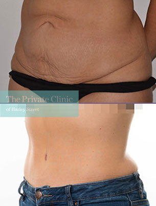 mini tummy tuck before after photos london results angle 057AR