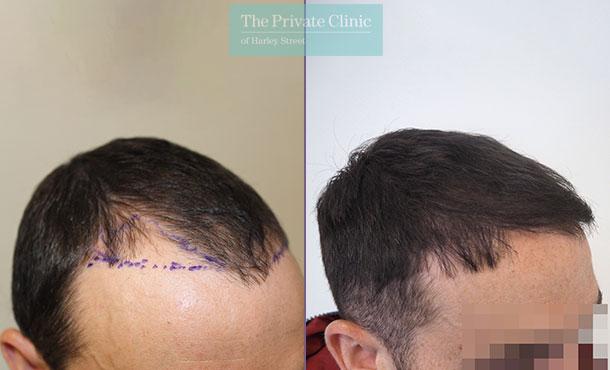 minimally invasive hair restoration transplantation before after photo results mr michael mouzakis side 007MM