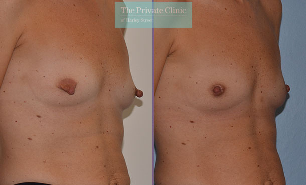 nipple reduction female before after photo uk results side mr adrian richards 039AR