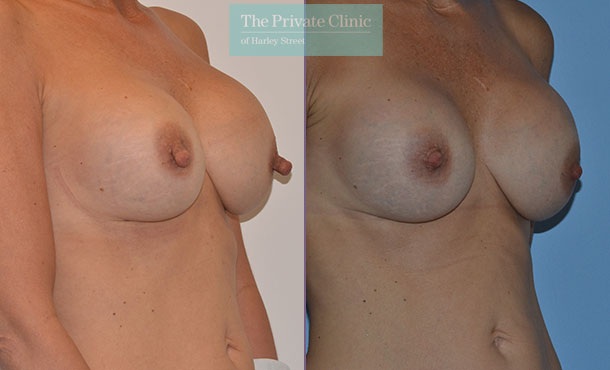 nipple reduction surgery female before after photos london results mr adrian richards 038AR