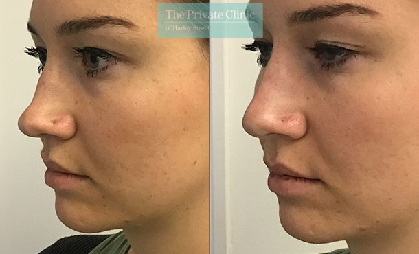 nose fillers non surgical rhinoplasty before after photos results the private clinic 002HHY