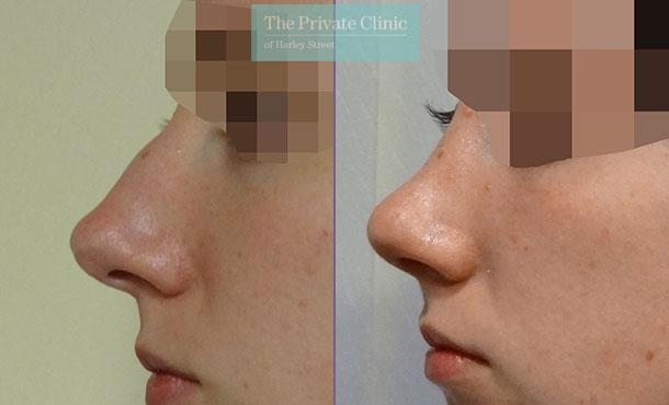 nose reshaping nose job rhinoplasty before after photos london harley street mr davood fallahdar 012DF