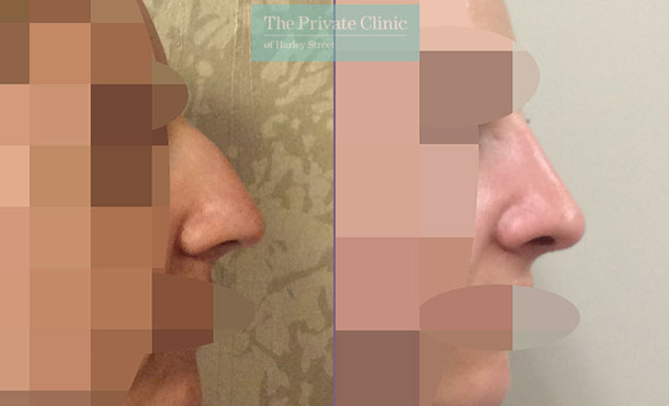 nose reshaping nose job rhinoplasty before after results photos london uk mr davood fallahdar side 013DF