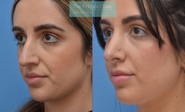 nose reshaping nosejob rhinoplasty before after photos manchester results mr adel fattah angle 004AF