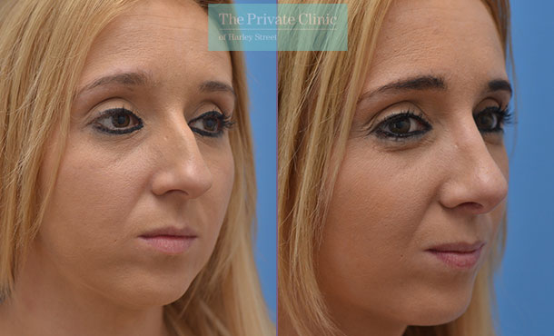 nose reshaping rhinoplasty surgery before after photos manchester results mr adel fattah angle 005AF