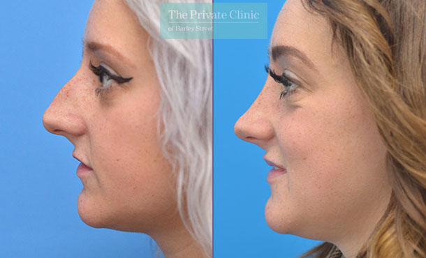 nose reshaping rhinoplasty surgery before after photos results manchester uk mr adel fattah side 003AF