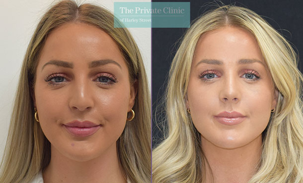 nose reshaping surgery rhinoplasty before after photos bristol results mr dario rochira front 002DR