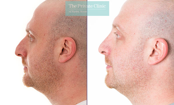 nose reshaping surgery rhinoplasty before after photos london harley street mr davood fallahdar 010DF