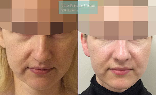nose reshaping surgery rhinoplasty before after photos london results mr davood fallahdar front 013DF