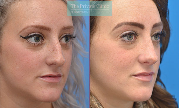 nose reshaping surgery rhinoplasty before after photos manchester results mr adel fattah angle 003AF