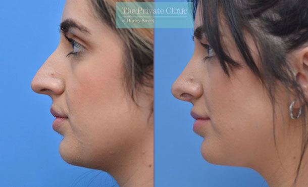nose reshaping surgery rhinoplasty before after photos manchester results mr adel fattah side 004AF