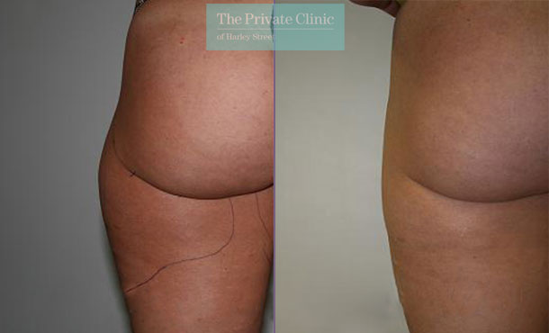 outer thighs liposuction london vaser lipo before after results photos dr dennis wolf 021DW