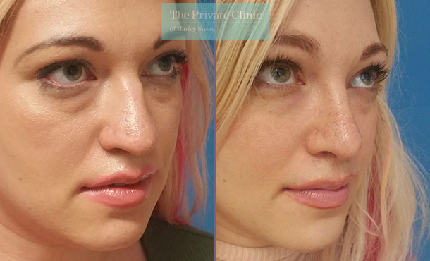 rhinoplasty nose job reshaping before after photos results birmingham mr mrinal supriya 001MS