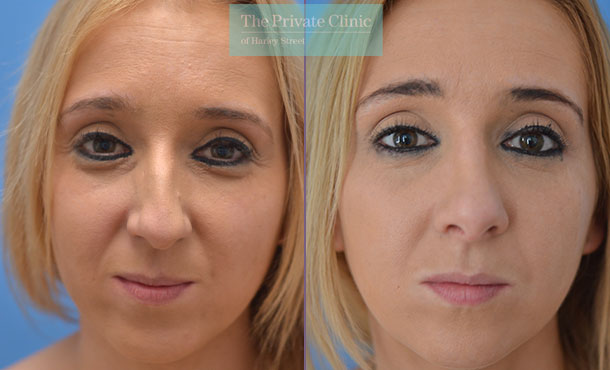 rhinoplasty nose reshaping nosejob before after photos manchester mr adel fattah front 005AF
