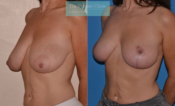 sagging breast uplift london before after results photos mr adrian richards angle 022AR