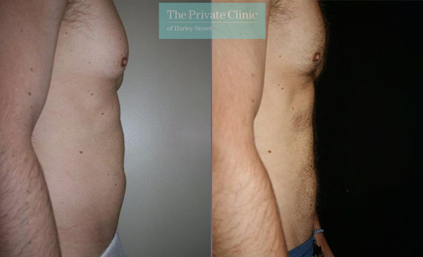 stomach lipo men vaser liposuction before after results photos dr dennis wolf 014DW