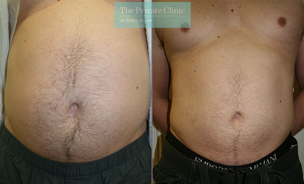 stomach liposuction men vaser lipo before after results photos the private clinic 004TPC