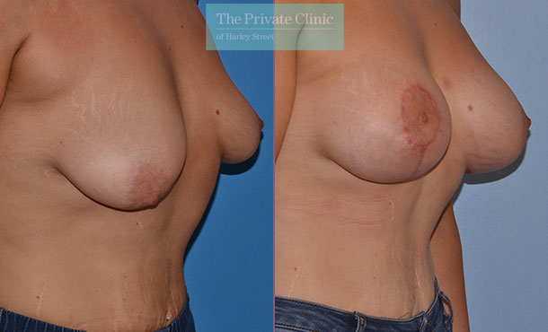 tuberous breast correction before after photos uk results angle Adrian Richards 046AR