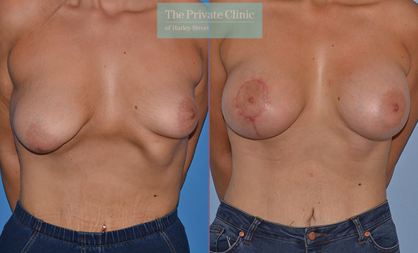 tuberous breast correction london before after photos results front Adrian Richards 046AR