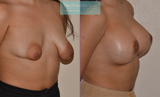 tuberous breast correction surgery london before after photos results angle Adrian Richards 044AR