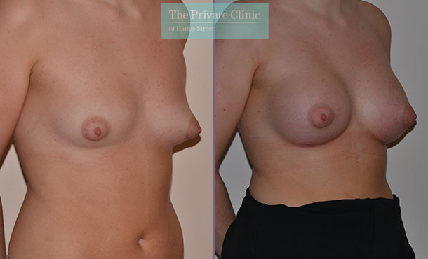 tuberous breast correction treatment before after photo results angle Adrian Richards 043AR
