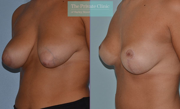 tuberous breast uplift mastopexy before after photos results angle mr adrian richards 041AR