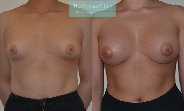 tubular breast correction before after photos results front Adrian Richards 042AR